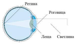 1-emetropia