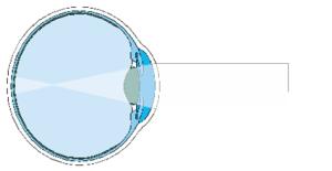 2-miopia