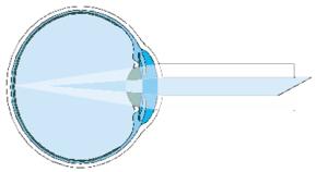 4-astigmatizym
